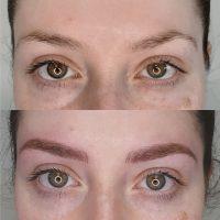medical-brows